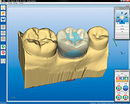 Cerec crown designed on model ready to be milled
