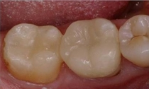 Replaced with durable Cerec White fillings