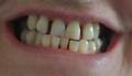 Lady concerned about the gaps between her teeth